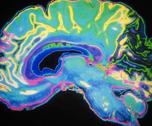 Alzheimer's disease may be infectious, study claims