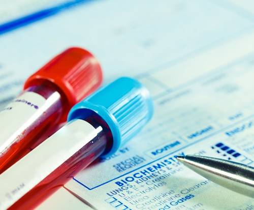 NHS set to roll out Blood test to detect 50 types of cancer