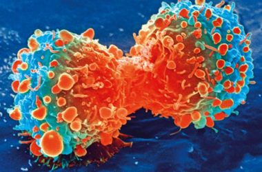 engineering careers  German scientists kill cancer cells with nano-sized copper compounds