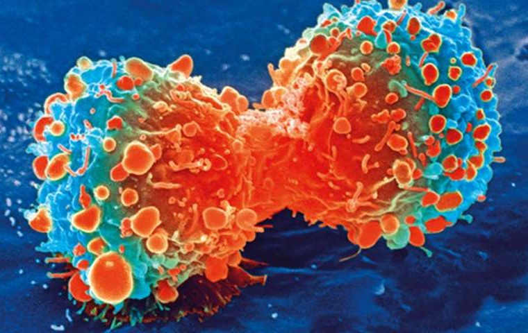 German scientists kill cancer cells with nano-sized copper compounds